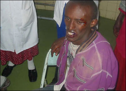 A man wounded in riots between opposition supporters and riot police in Addis Ababa