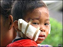 An injured child in Gunung Sitoli