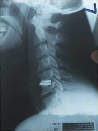 An X-ray of Phil Dowson's neck, with the new disc near the bottom
