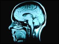 An MRI scan of the brain