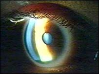 Image of the eye