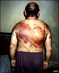 Image released by the Sunni Muslim Scholars Association of alleged torture by Iraqi police