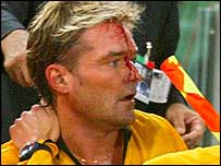Blood pours from the forehead of referee Anders Frisk