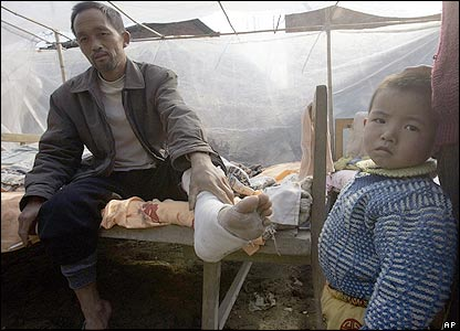 Cai Jinneng nurses an ankle injured as he fled his home after the earthquake in Ruichang, China.