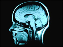 Image of MRI