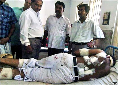 Lawyer Anwar Fakir who was injured in Gazipur