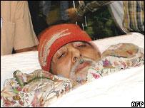 Amitabh Bachchan is taken on a stretcher to the Leelavati hospital in Mumbai