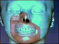 Gr�fico que muestra las partes de la cara afectadas