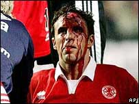 Injured Middlesbrough defender Gareth Southgate