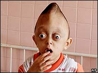 3-year-old Xuan Minh, believed to have genetic defects from Agent Orange