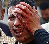 A bleeding Egyptian supporter of the Muslim Brotherhood holds his head after he was injured during clashes with the police in al-Mansoura