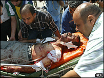 Injured man in Baghdad is rushed to hospital