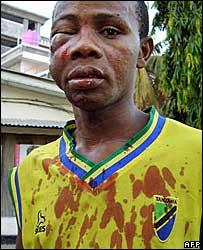 Zanzibar resident hurt in political clashes