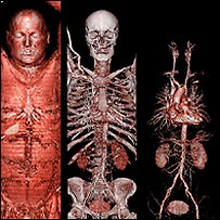 Cardiovascular, skeletal and muscular scans of a 65-year-old man (copyright - Siemens)