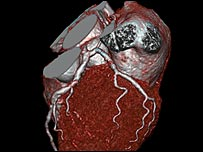 Heart scan - copyright Siemens