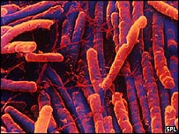 Clostridium difficile - copyright Science Photo Library