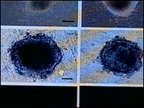 Photographs of stem cells said to have been created by South Korean scientists