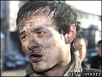 An injured miner talks to the press after an explosion at Dongfeng Coal Mine on November 30, 2005 in suburb of Qitaihe City of Heilongjiang Province, northeast China.