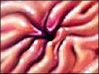 A stomach ulcer