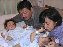 Conjoined twins with parents in Singapore