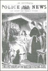 Newspaper sketch of Sarah Jacob being monitored by doctors