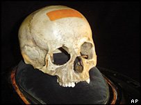 Alleged skull of Wolfgang Amadeus Mozart