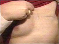 Stuart Weaver's chest