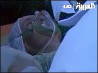 Injured Hajj pilgrims in Mina, Saudi Arabia