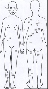 Drawing of injuries