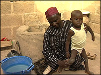 Aminu and Umar Ahmed, who suffered from polio