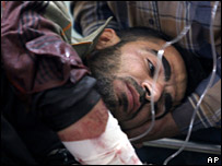 A victim of the ambushed convoy receives emergency medical care at the Yarmouk Hospital