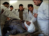 A victim of a 16 January car bomb is treated in hospital north of Baghdad