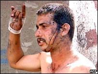 Man injured in Samarra bombing