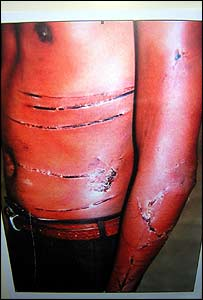 Picture of alleged Zimbabwean torture victim