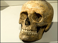 A plague victim's skull (Birmingham Univeristy, courtesy of the Museum of London)