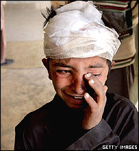 Bugti boy weeping after mortar attack