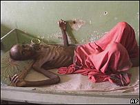 Un enfermo de TB en India