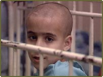 Institutionalised Romanian child in Transylvania, 1990s