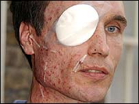 Blast victim Michael Henning