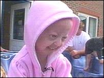 Hayley Okines has progeria