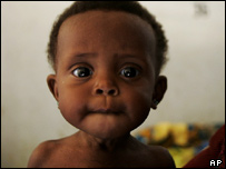 Zao Amaye a ten-month-old girl suffering from malnutrition sits in the hospital in Maradi, Niger