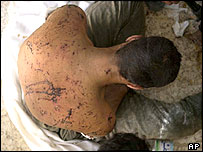 An Iraqi man who the US Marines say was tortured with electricity while being held captive in Karabilah in June