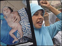 Indonesian woman holding a placard of a child alleged to have suffered a skin complaint because of environmental pollution