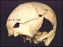 Early Neolithic female skull  Image: Rick Shulting