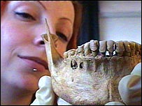 Harriet Jacklin with a diseased jawbone