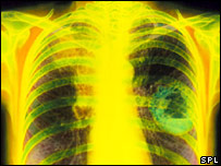 Lung cancer X-ray (Simon Fraser/Science Photo Library)