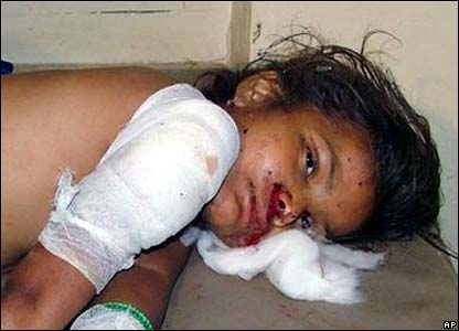 A girl injured in Varanasi blasts