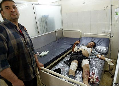 A man injured in a bomb attack in Baghdad