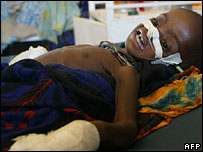 Somali child in hospital