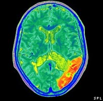 Brain scan showing area of stroke damage